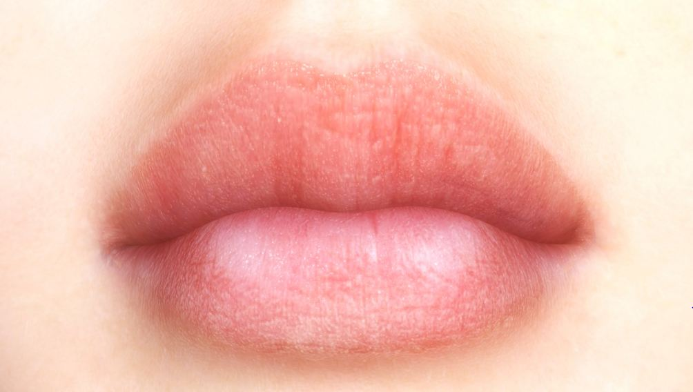 What Causes Split Lip Corners
